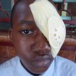 Ein Kind nach der Augenoperation in Bafia