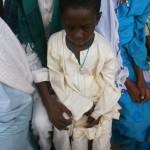 Der kleine Mohamadou (7 Jahre) ist noch ängstlich vor seiner Augenoperation