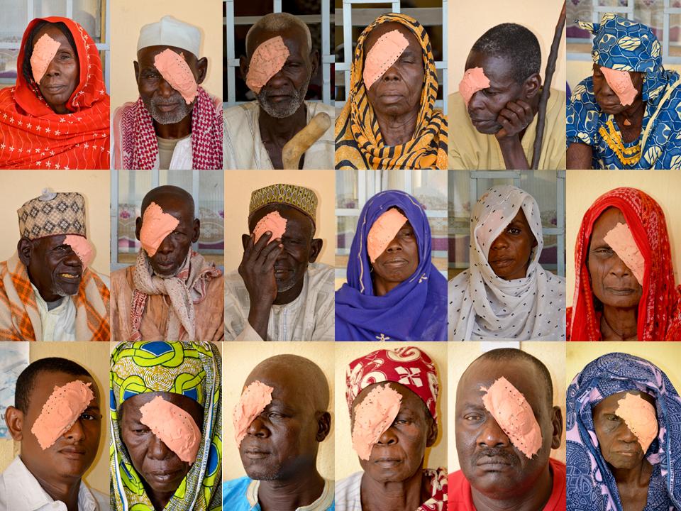 Patienten nach OPs ermöglicht von Augenhilfe Afrika e.V.